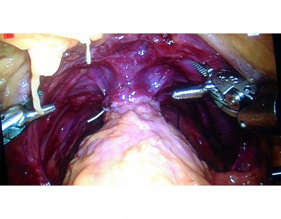 australian urology guidelines renal stones